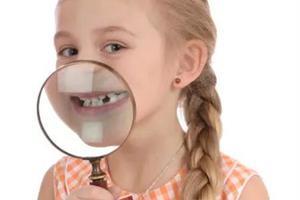 孩子正畸为何要拔好几颗牙