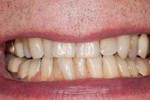 把脏牙齿放大1000倍的图片给孩子看,从此天天主动刷牙,拦都拦不住!