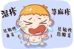 引起宝宝过敏常见的过敏源有哪些?
