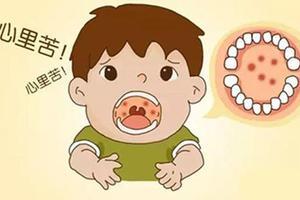 医生提醒:夏季幼儿疱疹性咽峡炎多发 应做好防护