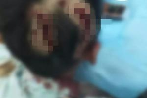 10岁男童小区内遭大型犬撕咬 头部脸部多处受伤