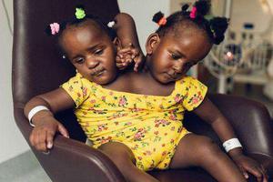 人生最艰难选择 连体双胞胎救哪个?