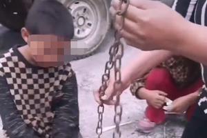 云南9岁男童脚上疑被家长锁铁链 当地官方回应