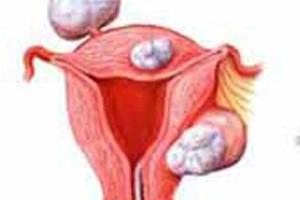 子宫肌瘤很可怕?这四种情况才需要临床干预