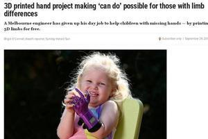 科技改变人生 澳先天残疾女孩获免费3D打印手掌