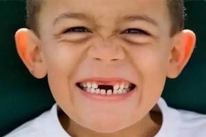 乳牙磕伤不用管?专家:会影响恒牙发育