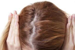产后脱发 中医专家支招轻松应付