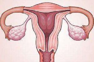 婚后不孕 或是甲状腺疾病惹祸