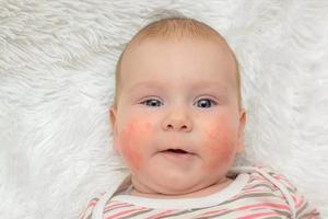 湿疹宝宝可以打疫苗吗?