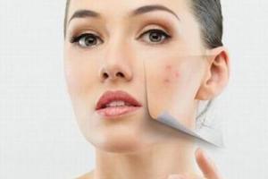"""长时间佩戴口罩会""""烂脸""""?专家教你如何应对皮肤损伤"""
