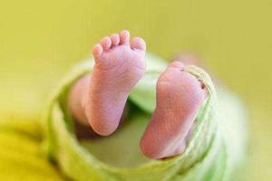 新生儿黄疸值高怎么办?