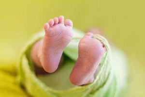 刚出生4天黄疸值偏高怎么办?