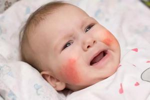 宝宝日常的皮肤清洁与护理有哪些注意事项?