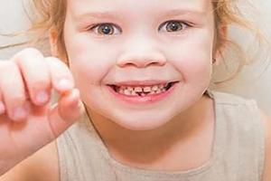 乳牙期哪些問題需要早期干預?