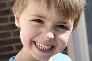 幾歲是牙齒正畸的最好時機?