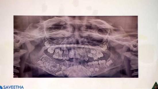 男孩下颌X光片(图源:BBC)