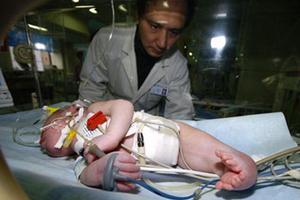"""妈妈诞下""""人鱼宝宝"""",只因孕期忽视了这些检查"""