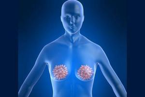 新型DNA检测法可提早一年诊断乳癌