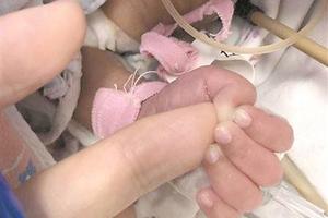医生手术中被早产宝宝紧紧抓住手指:他想活下去