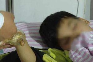 11岁男孩点燃鞭炮扔出后未响 捡起观看手指被炸断