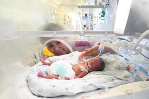 """山西首例孕24周""""手掌婴儿""""救治成功"""