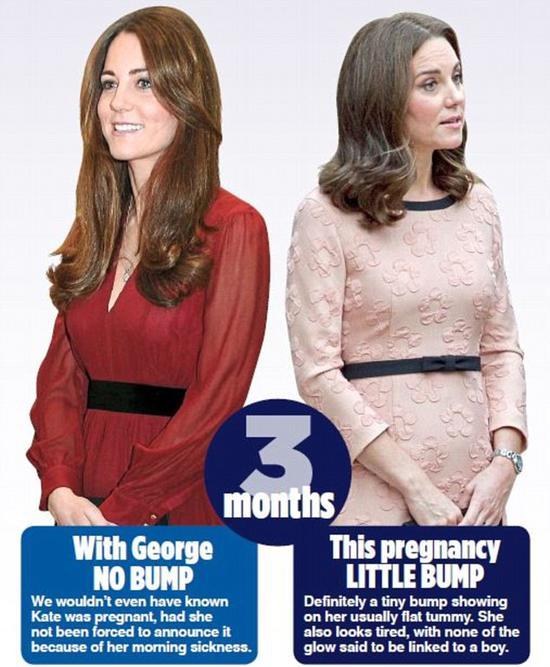 凯特王妃孕3月对比照