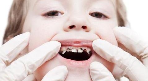 宝宝牙齿长黑斑 这些措施要做好
