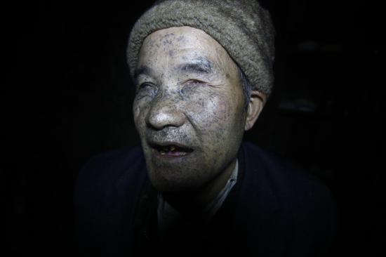 """""""邹树礼的脸,在爆炸中浸透了煤灰,像'青面兽'杨志,曾让小孙子害怕。"""""""
