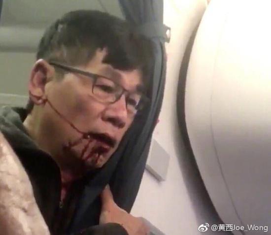 微博大V黄西转发的遭遇施暴者满脸是血的图片