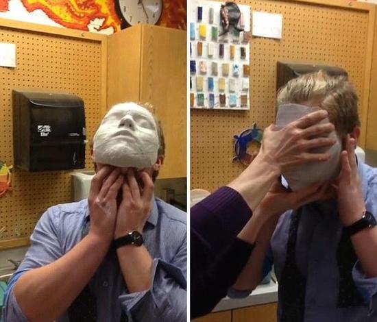 美国学生错误使用石膏面具无法摘除。