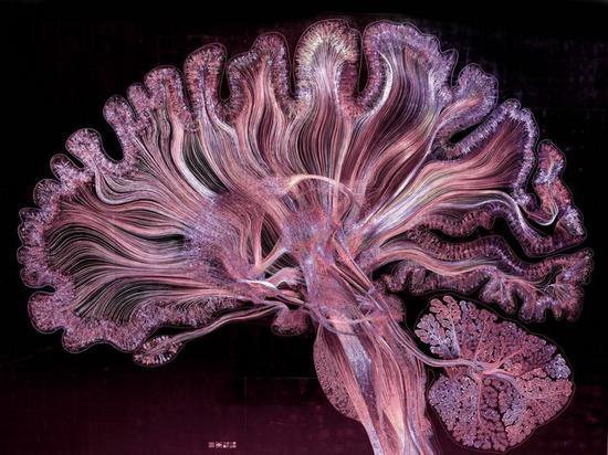艺术家手绘脑神经