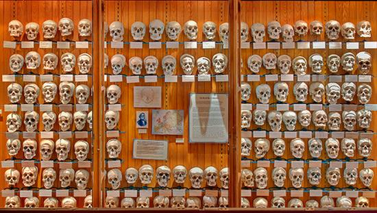 一墙头骨,下面注有年龄、出生地和死因(多半是自杀或因罪获刑)
