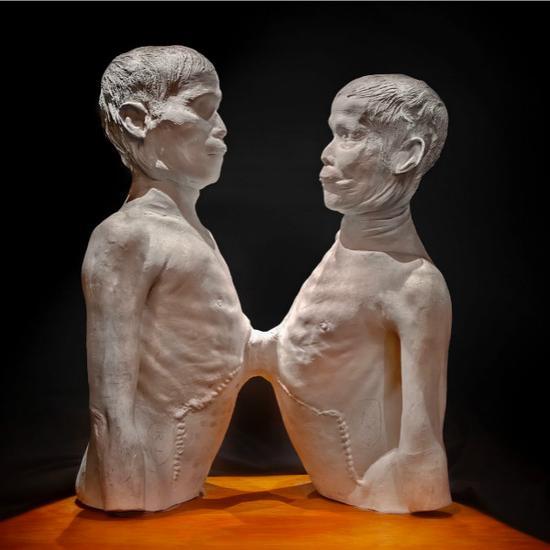 连体人的石膏模型