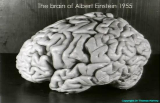 1955年哈维给爱因斯坦大脑拍的照,最新研究说中间有个沟比我们普通人深且宽