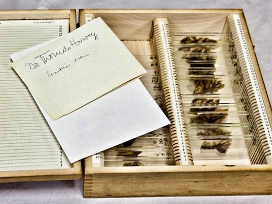 爱因斯坦的大脑切片和哈维的纸条