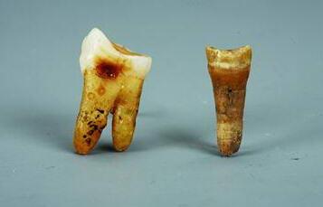 古人类牙齿化石