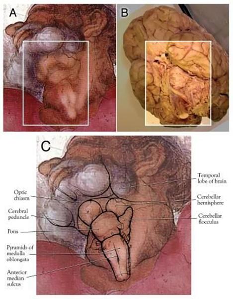 大脑还是子宫?