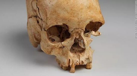 """南美洲最古老的人类化石:1975年出土的、估计生活在公元前12000年的女性化石""""露西亚""""(Luzia Woman)"""