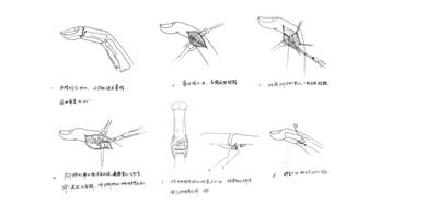 医生化身画家 为患者快速画手术示意图