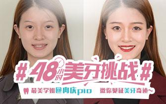 最美学姐#48小时美牙挑战#完美蜕变!