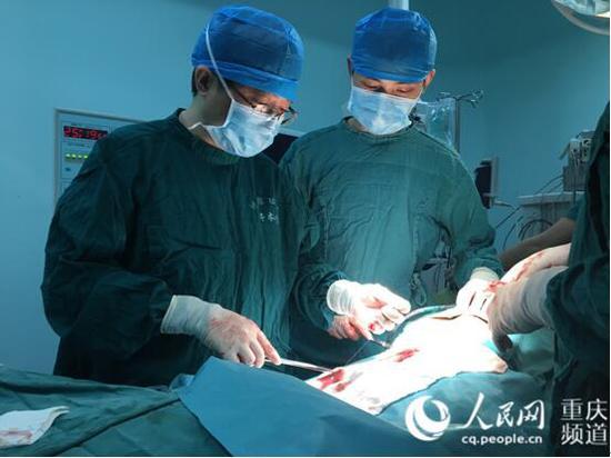 重庆大学附属肿瘤医院胸部肿瘤中心主任江跃全(左一)在手术中。李太杰 摄