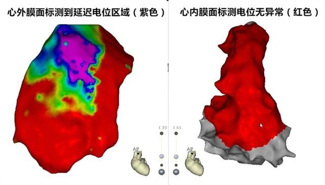 图2 右室流出道心外膜面和心内膜面电位分布图,红色为正常电位区域,紫色为延迟电位区域。