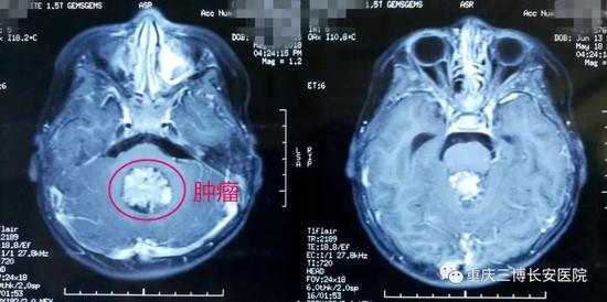 MRI:标注处为肿瘤