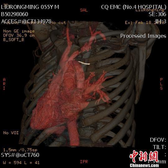图为刘某检查时的三维成像图。 重庆急救中心供图