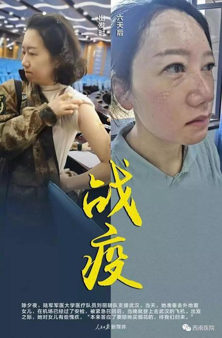 刘丽的对比照感动无数网友 西南医院供图