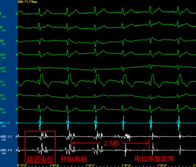 图3 在一心外膜延迟电位靶点进行消融,延迟电位逐渐消失,2.5秒后恢复正常电位。