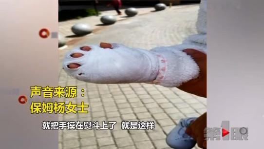 保姆熨衣服中途上厕所 一岁幼童手被烫伤