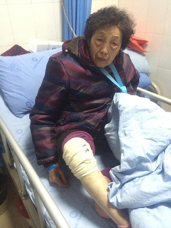 摔伤入院的陈仕梅。