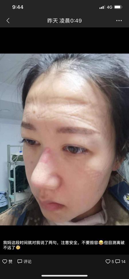 刘丽刚刚脱下防护面罩  西南医院供图