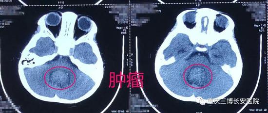 CT:标注处为肿瘤